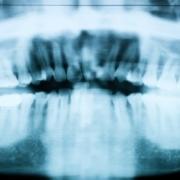 Fogászati röntgen